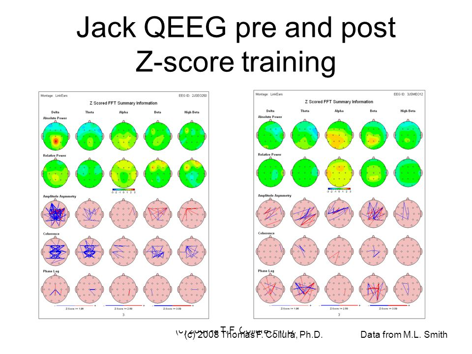 Jack QEEG pre and post Z-score training