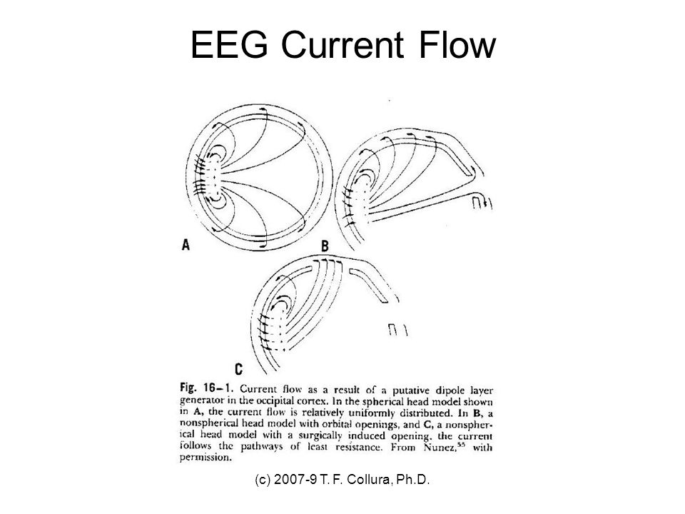 EEG Current Flow (c) 2007-9 T. F. Collura, Ph.D.