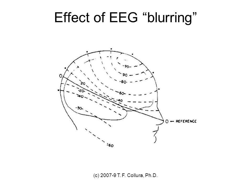 Effect of EEG blurring