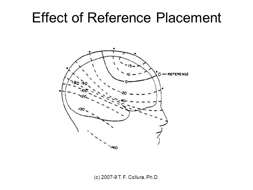 Effect of Reference Placement