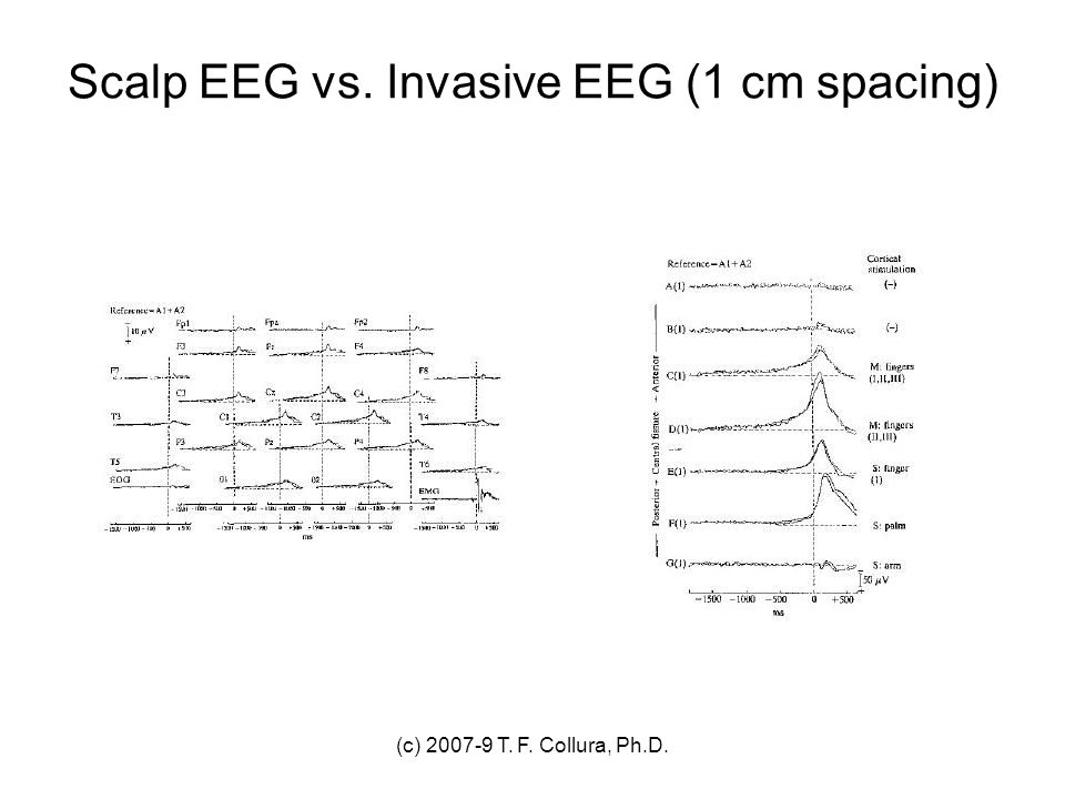 Scalp EEG vs. Invasive EEG (1 cm spacing)