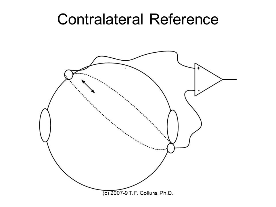 Contralateral Reference