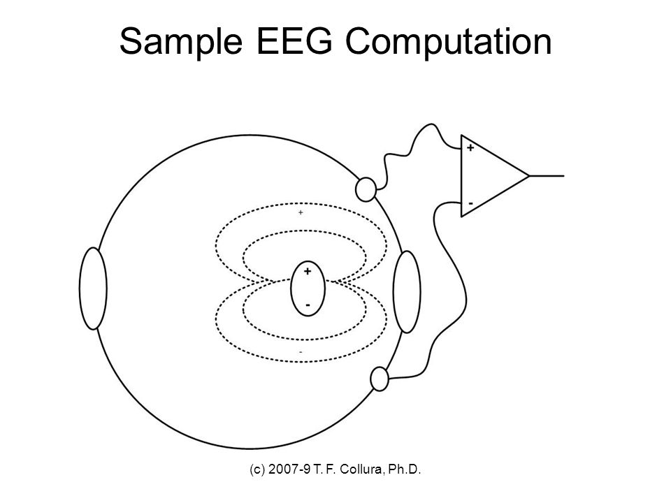 Sample EEG Computation