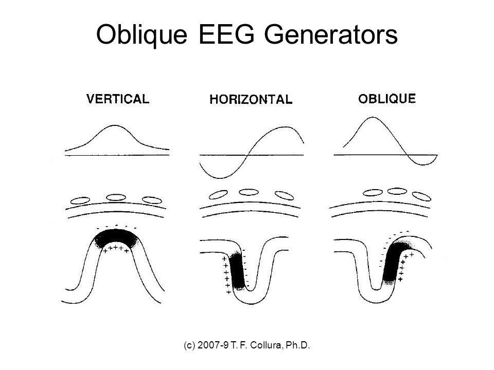Oblique EEG Generators