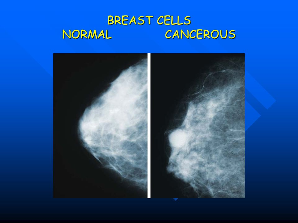 BREAST CELLS NORMAL CANCEROUS