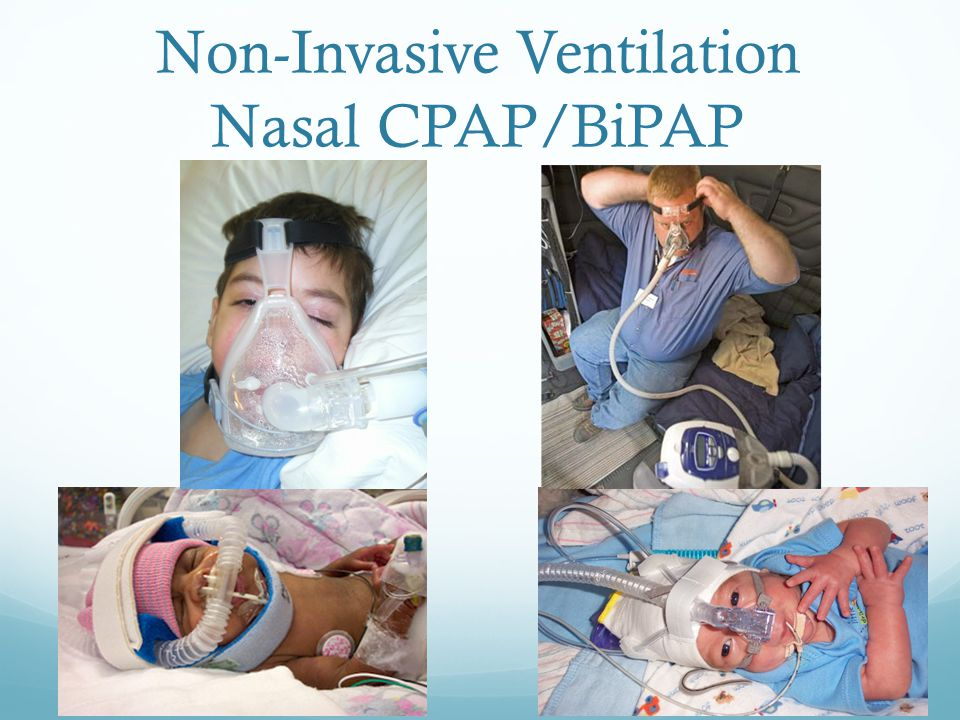 Non-Invasive Ventilation Nasal CPAP/BiPAP