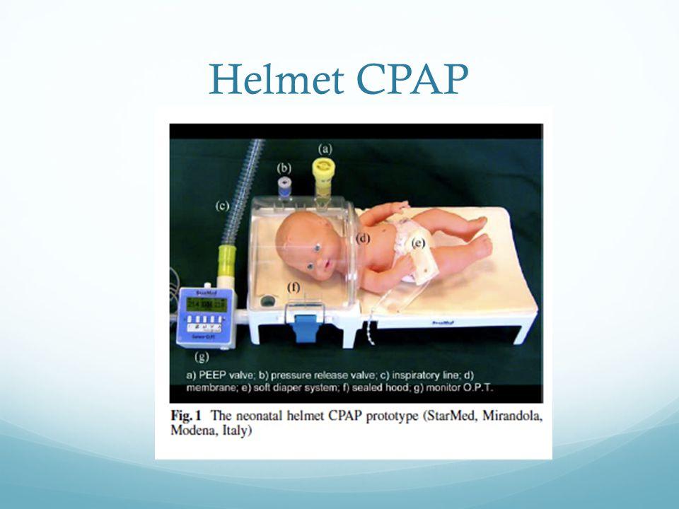 Helmet CPAP