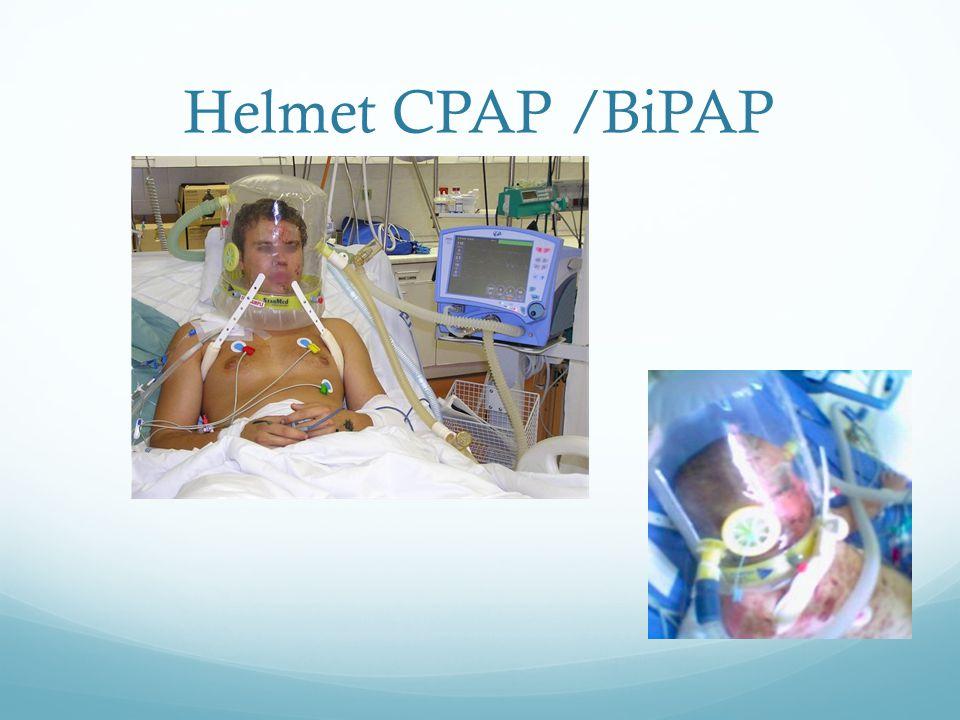 Helmet CPAP /BiPAP