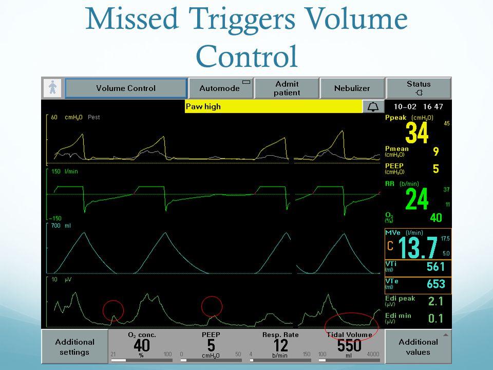 Missed Triggers Volume Control