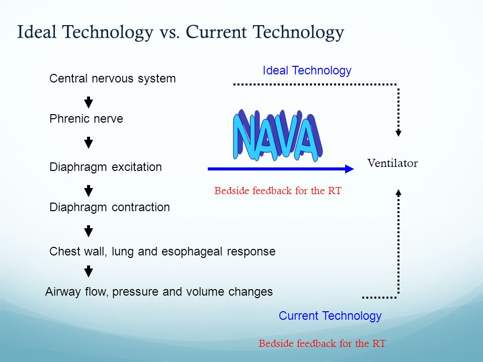 NAVA Ideal Technology vs. Current Technology Ideal Technology