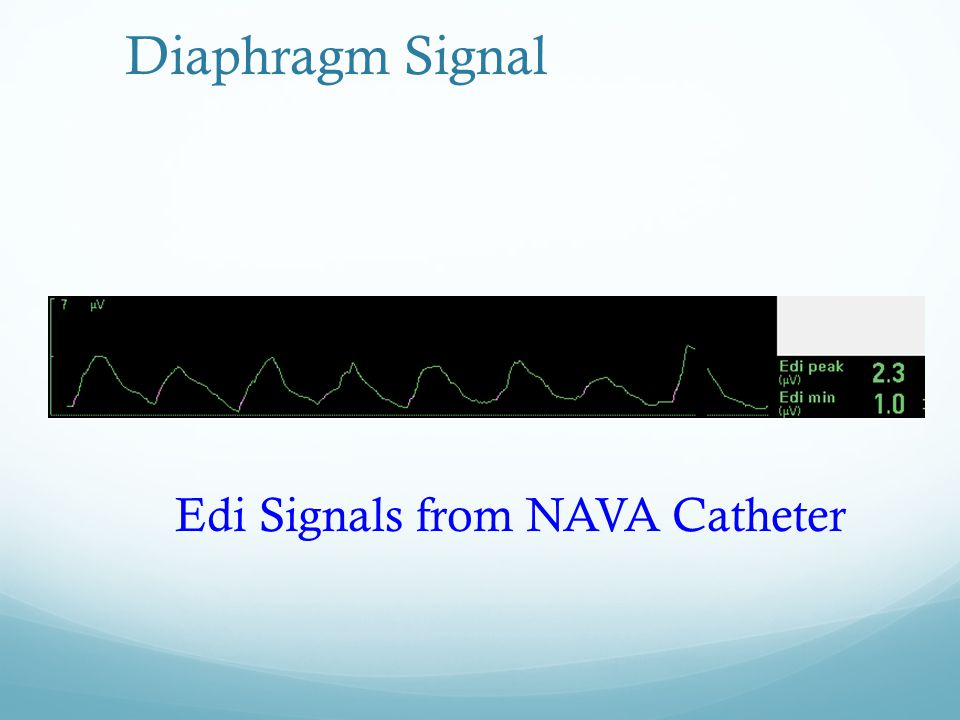 Diaphragm Signal Edi Signals from NAVA Catheter