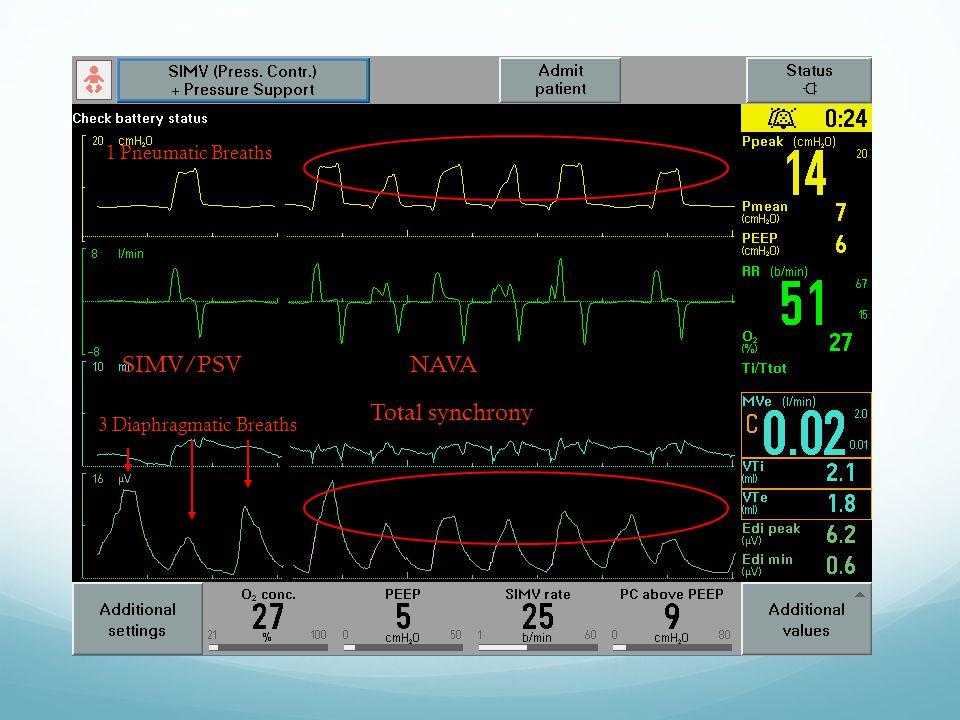 SIMV/PSV NAVA Total synchrony 1 Pneumatic Breaths