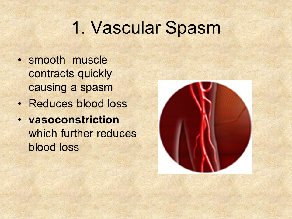 1. Vascular Spasm smooth muscle contracts quickly causing a spasm