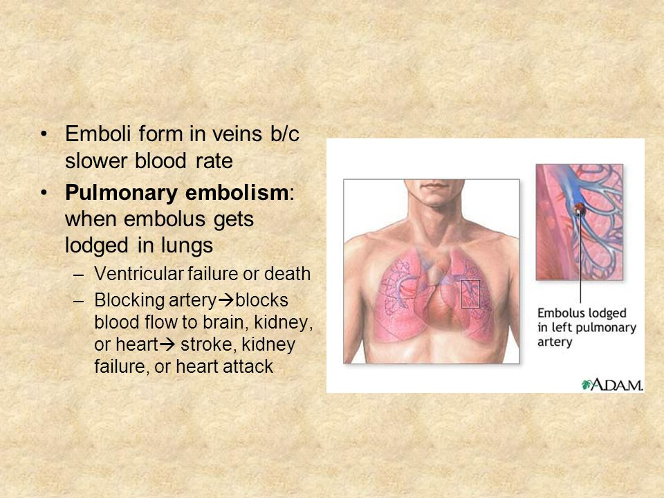 Emboli form in veins b/c slower blood rate