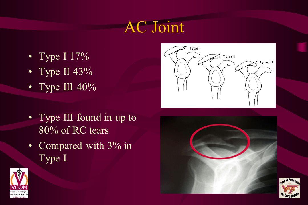 AC Joint Type I 17% Type II 43% Type III 40%