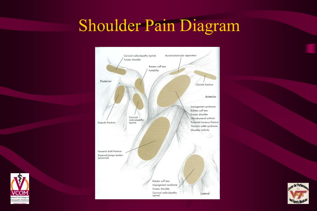 Shoulder Pain Diagram