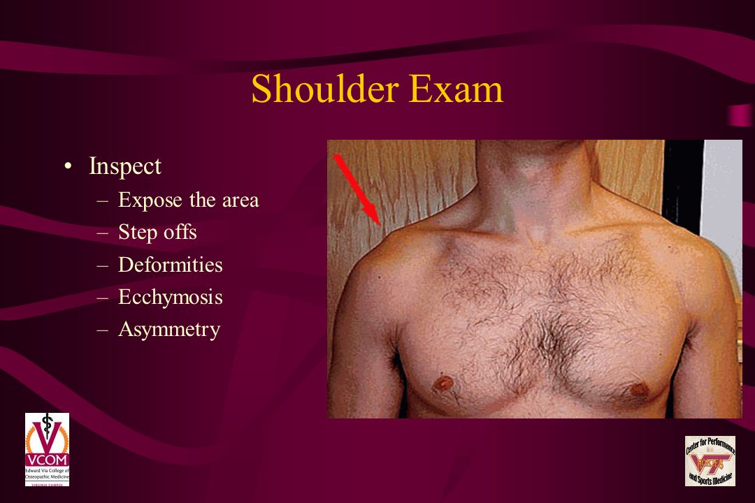 Shoulder Exam Inspect Expose the area Step offs Deformities Ecchymosis