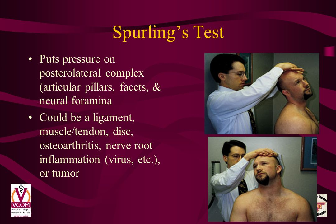 Spurling's Test Puts pressure on posterolateral complex (articular pillars, facets, & neural foramina.