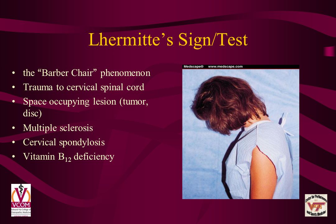 Lhermitte's Sign/Test