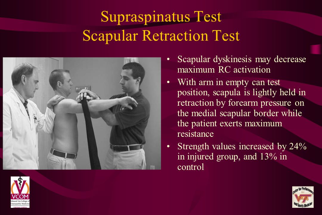 Supraspinatus Test Scapular Retraction Test