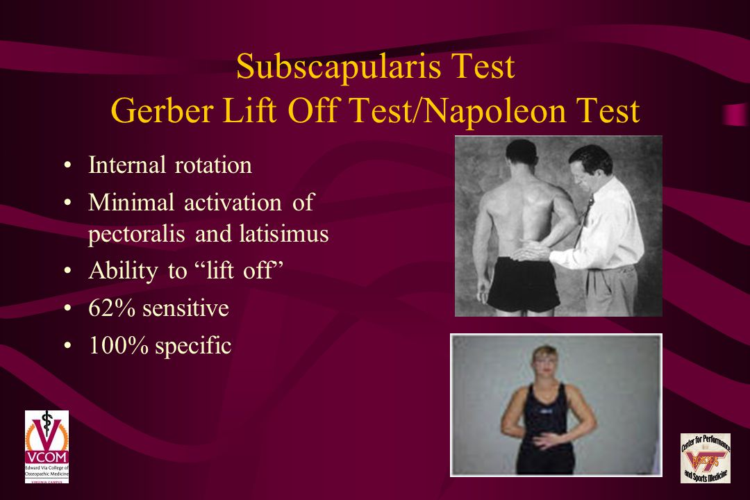 Subscapularis Test Gerber Lift Off Test/Napoleon Test