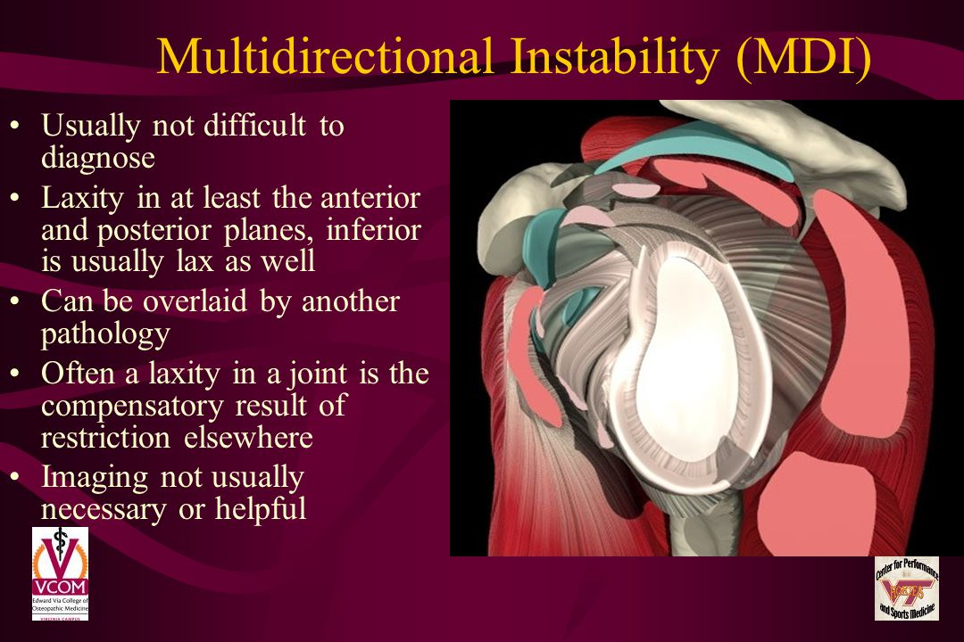Multidirectional Instability (MDI)