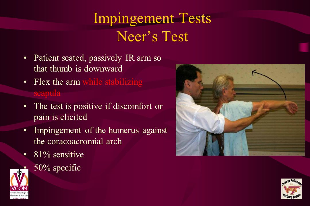Impingement Tests Neer's Test