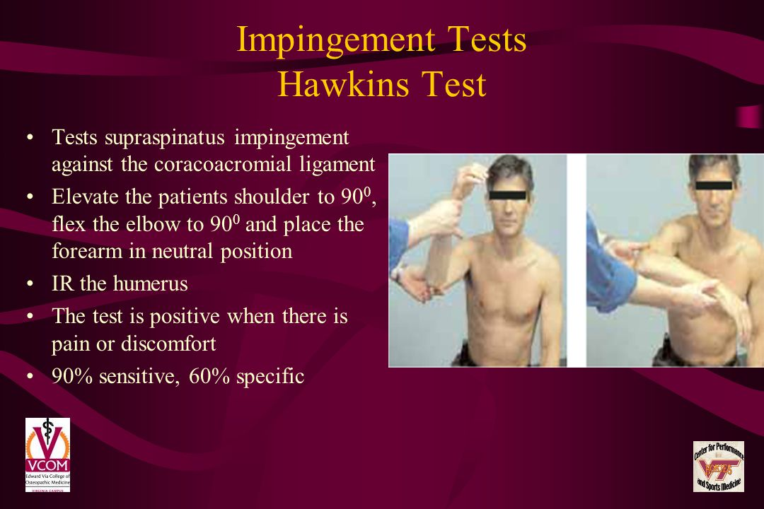 Impingement Tests Hawkins Test