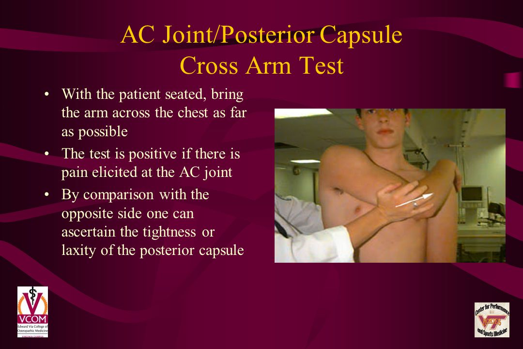 AC Joint/Posterior Capsule Cross Arm Test