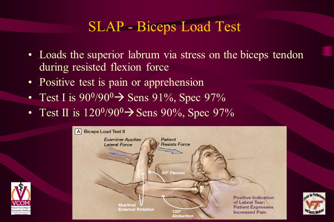 SLAP - Biceps Load Test Loads the superior labrum via stress on the biceps tendon during resisted flexion force.