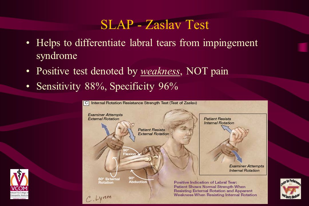SLAP - Zaslav Test Helps to differentiate labral tears from impingement syndrome. Positive test denoted by weakness, NOT pain.