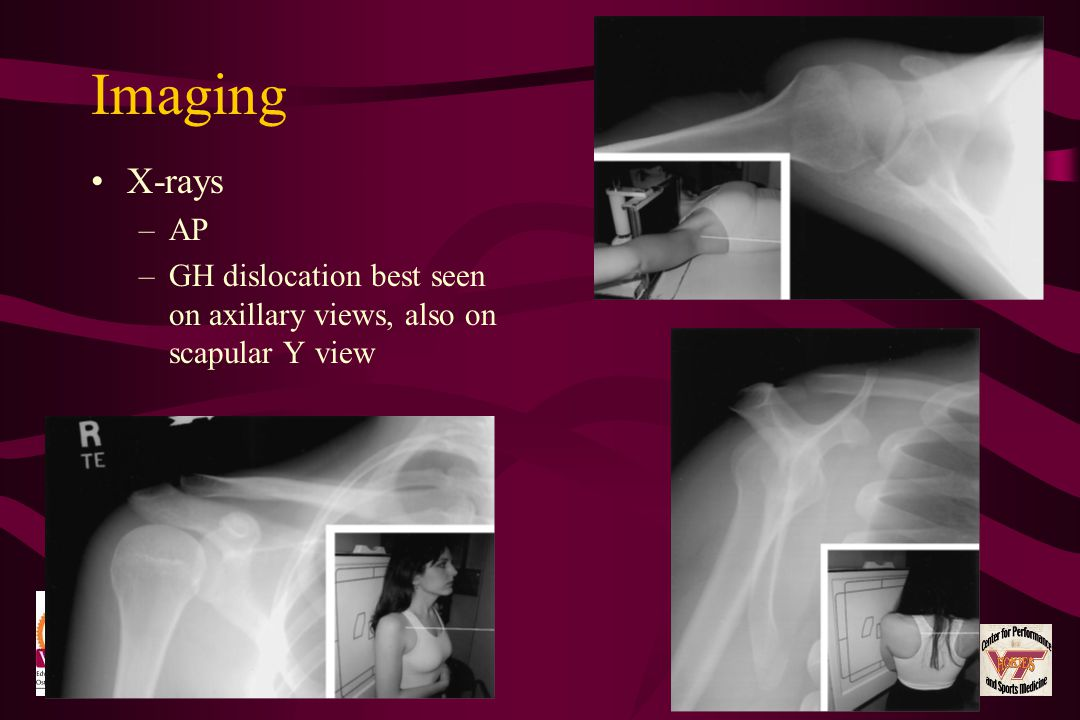 Imaging X-rays. AP. GH dislocation best seen on axillary views, also on scapular Y view.