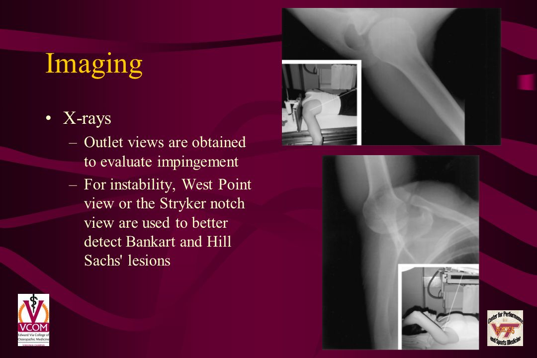 Imaging X-rays Outlet views are obtained to evaluate impingement
