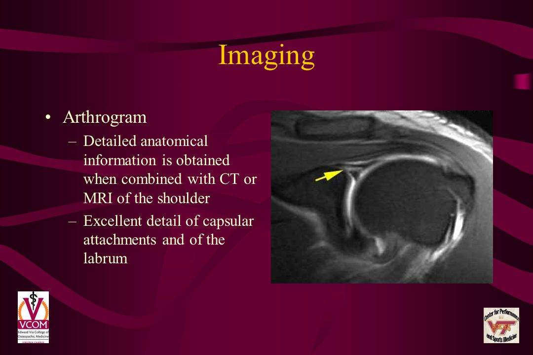 Imaging Arthrogram. Detailed anatomical information is obtained when combined with CT or MRI of the shoulder.