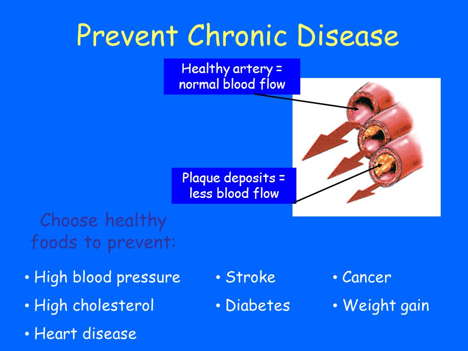 Prevent Chronic Disease