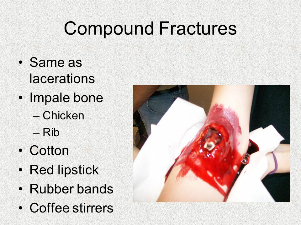 Compound Fractures Same as lacerations Impale bone Cotton Red lipstick