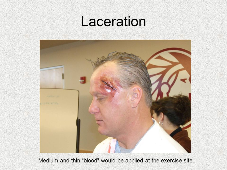 Laceration Medium and thin blood would be applied at the exercise site.