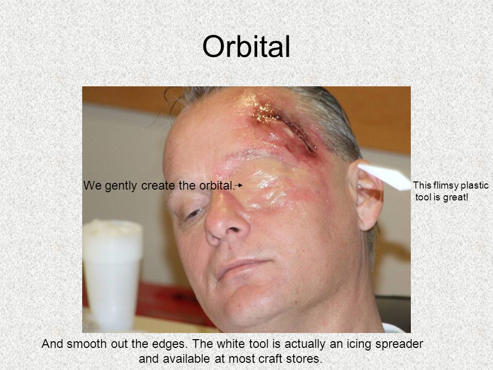 Orbital We gently create the orbital.