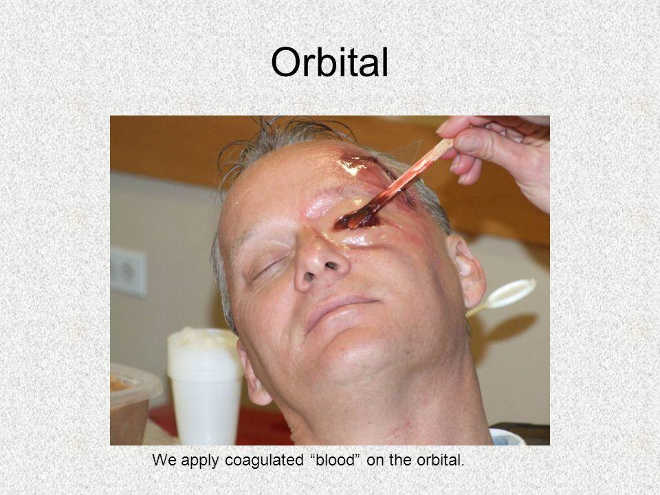 We apply coagulated blood on the orbital.