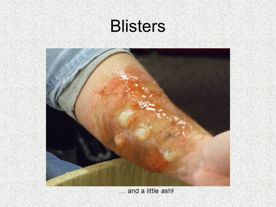 Blisters … and a little ash!