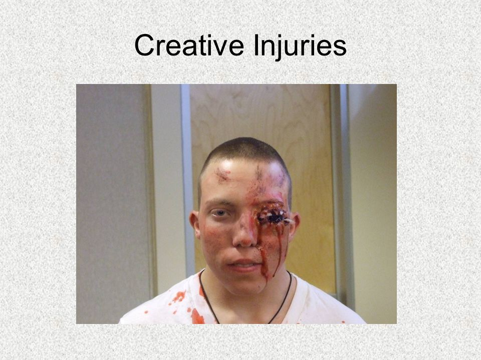 Creative Injuries