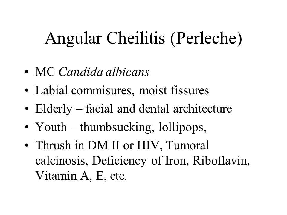 Angular Cheilitis (Perleche)