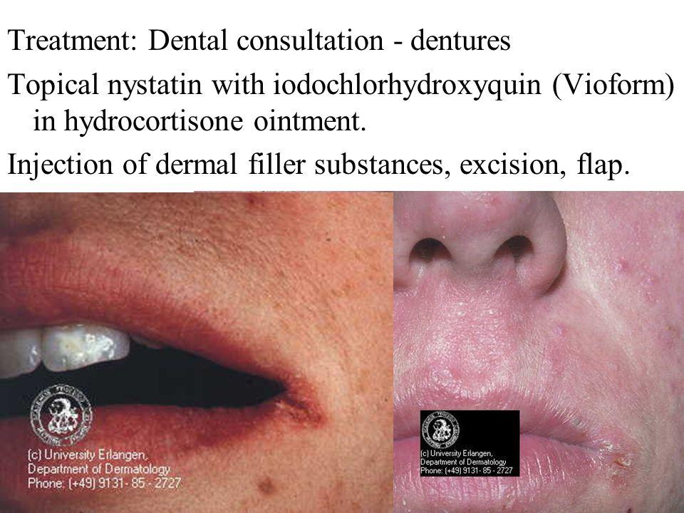 Treatment: Dental consultation - dentures