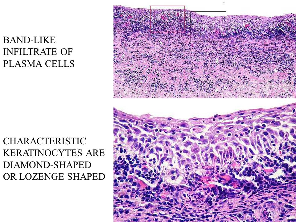 BAND-LIKE INFILTRATE OF PLASMA CELLS