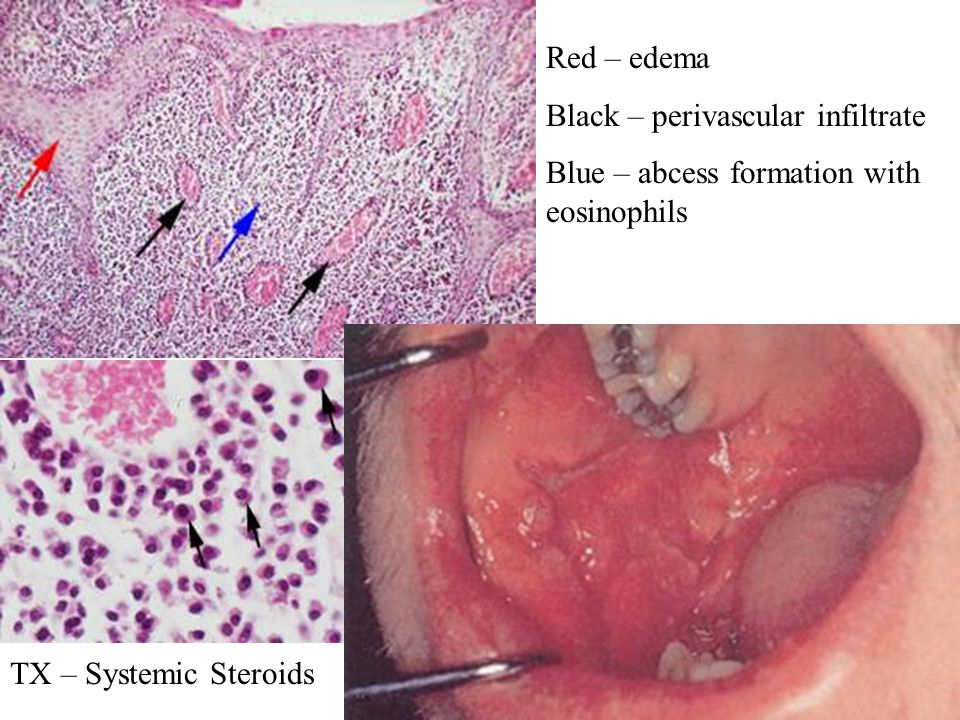 Red – edema Black – perivascular infiltrate. Blue – abcess formation with eosinophils.