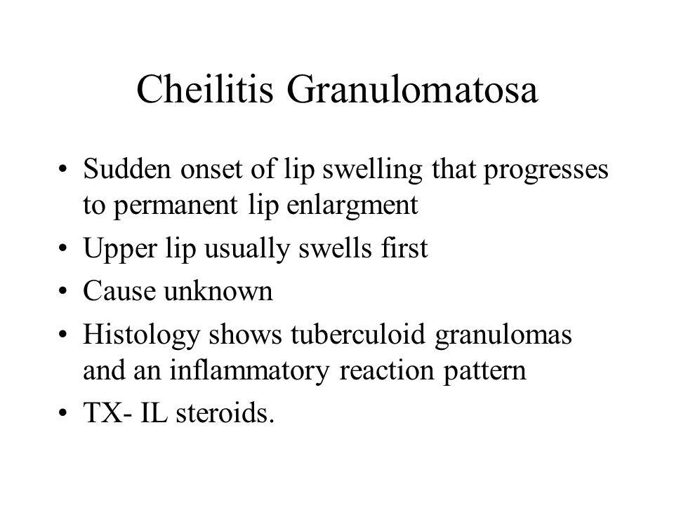 Cheilitis Granulomatosa