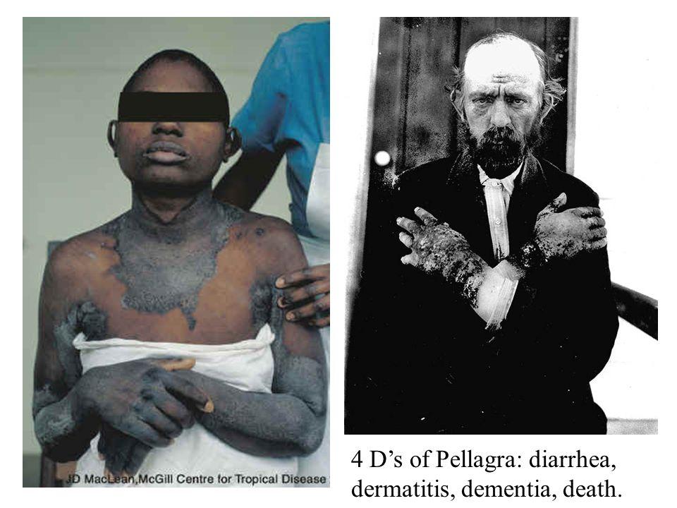 4 D's of Pellagra: diarrhea, dermatitis, dementia, death.