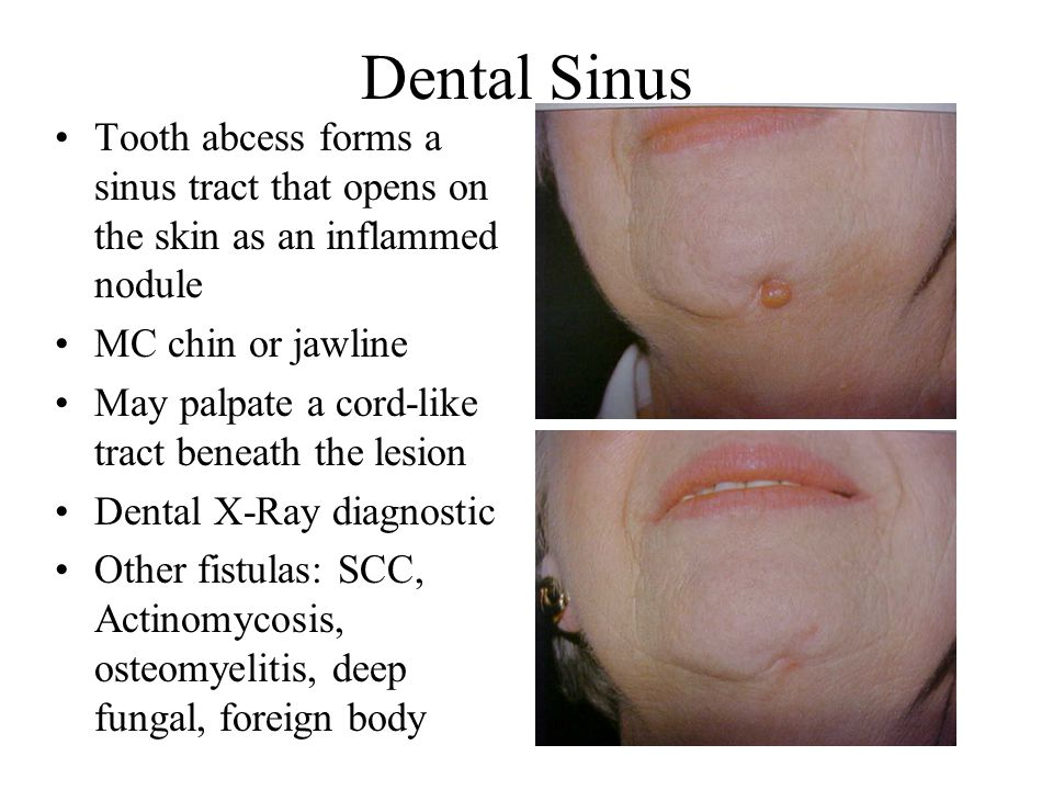 Dental Sinus Tooth abcess forms a sinus tract that opens on the skin as an inflammed nodule. MC chin or jawline.