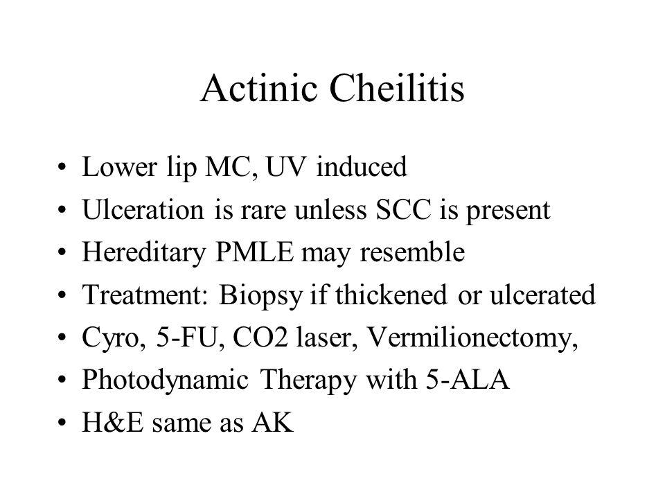 Actinic Cheilitis Lower lip MC, UV induced