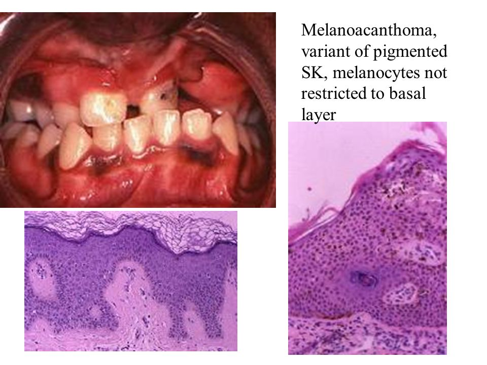 Melanoacanthoma, variant of pigmented SK, melanocytes not restricted to basal layer